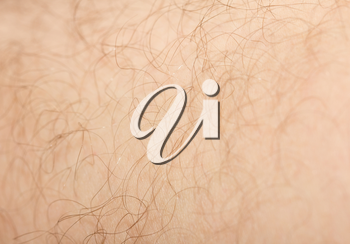 background of the hair on his leg. macro
