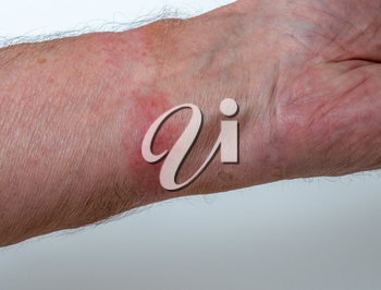 Close up of contact dermatitis or skin allergy due to wearing a leather watch strap